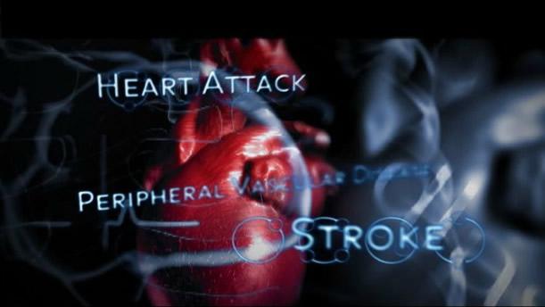 Heart Attack / Stroke - Asheville Functional Medicine
