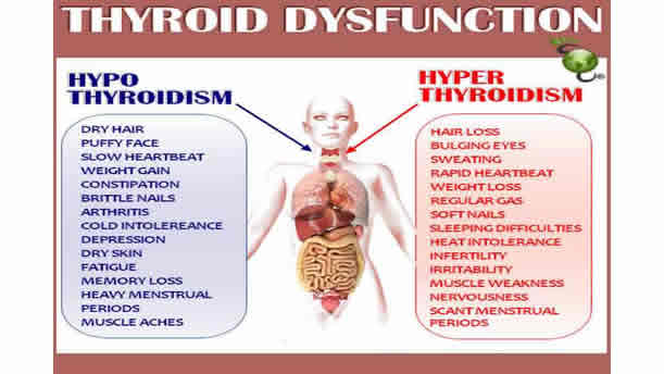 True Health Is The Cure For Thyroid Problems And Hypothyroidism